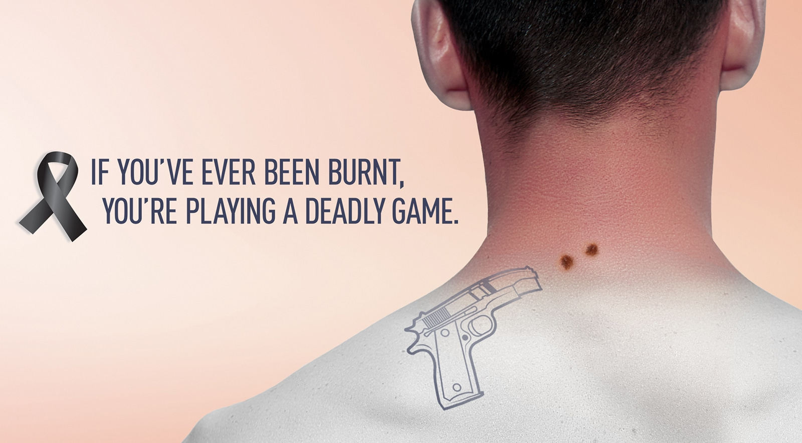 If you've ever been burnt ad